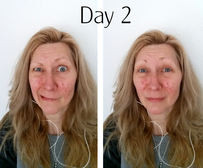 Rosacea laser treatment day 2