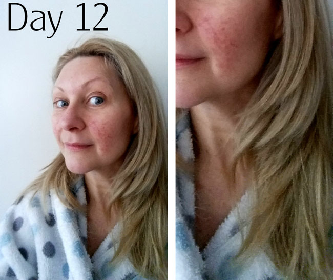 rosacea treatment after day 12