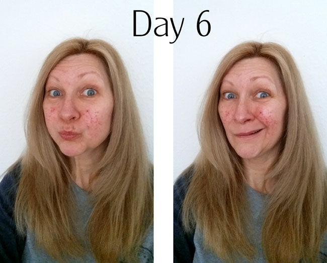 rosacea treatment after day 6