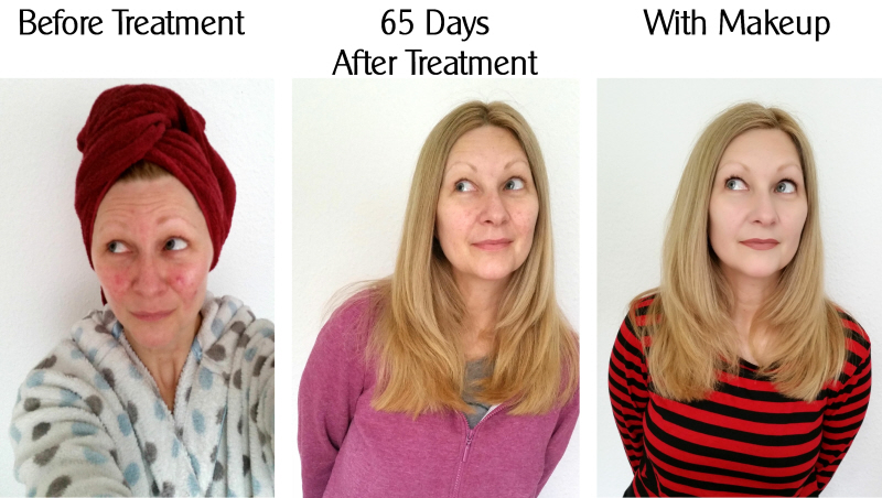 rosacea laser treatment before after makeup