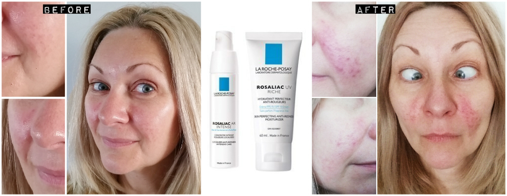Rosacea Reviews: Avene Antirougeurs & La Roche Posay Rosaliac
